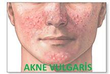 Akneyi Tanıyalım / Akne ciltte bulunan yağ bezlerinin bir hastalığıdır. Normalde bu bezlerin salgıladığı yağın deri yüzeyine çıkarak atılması gerekir. Fakat ergenlik döneminde yağ bezi daha fazla yağ salgılar, bu yağın deri yüzeyine geçişini sağlayan kanal yoğunlaşmış bir yağ kütlesi sebebi ile tıkanır. Aknenin temel  nedeni ise bu tıkanmadır.