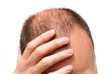 Co Na Wypadanie Włosów / Nie ma znaczenia od jak dawna dotyka Cię problemem jakim jest wypadanie włosów, ponieważ teraz dzięki http://hairlossmen.pl masz możliwość poznania najskuteczniejszych rozwiązań opracowanych przez najlepszych specjalistów w tej branży, tj. tabletki na wypadanie włosów follixin i procerin, grzebień laserowy vivicomb, szampon revita i płyn nr-07, dzięki którym odwrócisz ten proces poprzez naturalną odbudowę włosów…