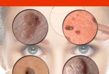 removing tags and moles and brown spots