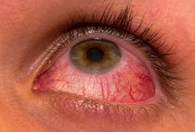 Uveitis Treatment / Uveitis Treatment by Herbal Care Products
