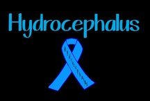 Hydrocephalus Awareness:)