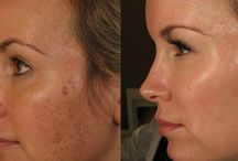 Aesthetic Lasers / The most effective and modern technologies offered to target pigment and resurface the skin.