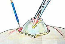 лечение от жировиков