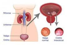vías urinarias
