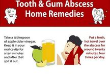 Tooth & Gum Abscess Home Remedies