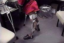 Polio - The Brace Lady