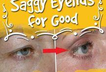 soggy eyelids