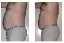 Endermologie RESULTS. / At the LASERINA clinic we believe in healthy life style, eating in moderation, appropriate exercise system and ADVANCED SLIMMING. Within 8 years of providing advanced slimming to our customers we adjusted our approach to slimming and combined Endermologie skin tightening and cellulite reduction treatment with ultrasonic Liposuction fat busting technology.  http://www.laserina.co.uk/endermologie-cellulite.html