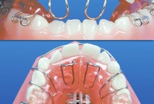 Tongue Thrust - Reverse Swallowing - Πλημμελή Κατάποση - Προπέτεια Γλώσσας