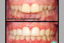 Before & After / Here you will find before and after orthodontic photos.