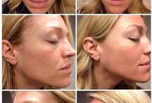 Rodan+Fields Before and Afters