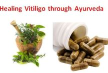 How to cure Vitiligo / Vitiligo is a skin disease in which skin colour gets lost due to loss of melanin pigment. Ayurveda medicines helps to cure vitiligo by improving immunity and results are permanent.