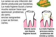 Caries Dental / ¿Qué es? y ¿Cómo prevenirla?