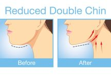 Reduce double chin