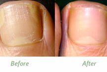 Tea Tree Oil for Toe Nail Fungus Treatment / Tea Tree Oil for Toe Nail Fungus Treatment