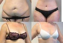 augmentation mammaire avant après / Parmi les différentes galeries de photos, nous exposons des exemples de photos avant – après d'augmentation mammaire par prothèse mammaire, photo ..