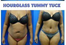 Tummy Tuck (Hourglass) by Dr. Wilberto Cortes