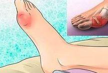 как избавиться от мочевой кислоты