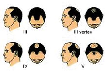 Hair Loss Info for Men and Women with Thinning Hair  / Information and Facts about hair loss in men and women.