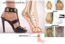 Deformity na nohach