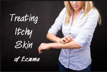 Eczema Help / How to treat and cure eczema naturally.