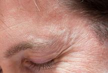 Eliminate Under Wrinkles And Dark Circles With Face Flexing Regimens