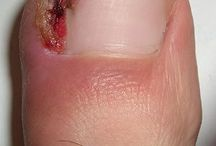 Tampa Ingrown Toenail Center / Get permanent relief from painful ingrown toenails at Advanced Podiatry in Tampa with the latest techniques.