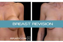 Breast Revision / View before and after photos of Dr. Schwartz's best work!