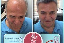 Saç Protez / Hairhotel tarafından hazırlanmış saç protezleri.
