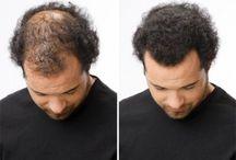 Hair growth remedies