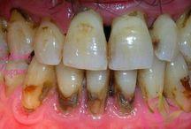 diş tartarı yok etme