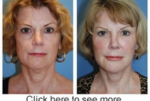 Facial Plastic Surgery Seattle | Bellevue