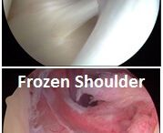 frozen shoulder therapy