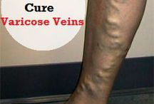 Natural Remedies to cure Varicose Veins