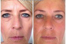Idaline Natuurlijk Genieten / Schoonheidsspecialist, Dr. Hauschka Therapeut en Natural Face Lifting Therapeut.