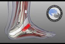 Como mejorar el esguince de tobillo / Como mejorar el esguince de tobillo