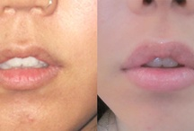 Non-Surgical Lip Enhancement