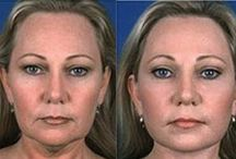 Facial Gymnastics  Exercises And Methods For Obtaining Organic Facelifts / Cool And Useful Exercises For The Face For A More Youthful Looking Skin