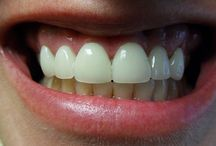 Cosmetic Dentistry / All about improving your smile.