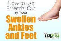 ankles swollen