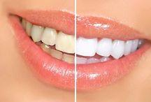 Patienter före och efter tandblekning / Tandblekning. Direktreklam. Före och efter för tandblekningsannonser..