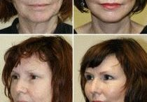 Face Massaging Workouts For An Invigorated Face Skin / Acquire An Oriental Non-Invasive Homemade Facelift Using Face Renewal Exercises