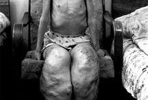 deformities caused by radiation