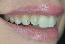 Cosmetic Dentists / Tooth Jewellery.