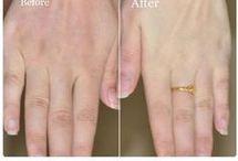elleri beyazlaştırma