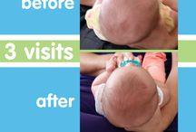 Baby Begin Before & After / We are so happy to see beautiful, happy babies because Baby Begin graduates with round heads! See our success stories here.