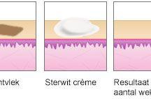 Pigmentvlekken verwijderen / Donkere huid opbleken en ouderdomsvlekken verwijderen met natuurlijke creme! http://www.pigmentvlekkenverwijderen.org/ / by Lisa Bakker