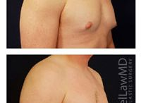 Gynecomastia (Male Breast Reduction) / All human males have breast tissue. In some adolescent boys and some men, the breast tissue that always exists behind every human male nipple (but which is usually not developed enough to see or feel) may begin to grow and gradually become noticeable as a swelling behind the nipple-areola complex. In some individuals this spontaneous development of breast tissue continues to involve the entire breast/chest area.