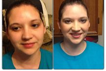 Before and After / Amazing results with Fleur de Vie's amazing all natural products!!!