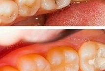 Heal Your Cavities